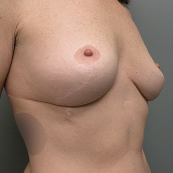35-44 year old woman treated with Inspira Breast Implants before 3724645