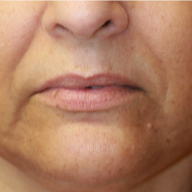 55-64 year old woman treated with Lip Lift before 3560849