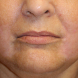 55-64 year old woman treated with Lip Lift after 3560849