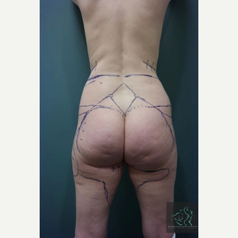 35-44 year old woman treated with Liposuction Revision before 2809178