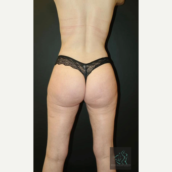35-44 year old woman treated with Liposuction Revision after 2809178