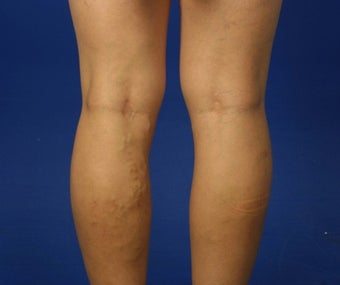 36 Year Old Female Treated for Varicose Veins 781675