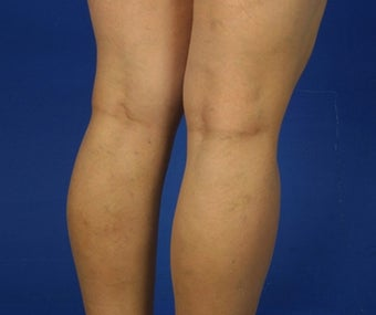 36 Year Old Female Treated for Varicose Veins after 781675