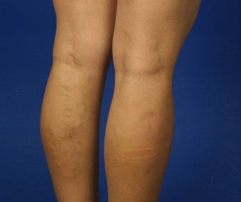 36 Year Old Female Treated for Varicose Veins before 781675