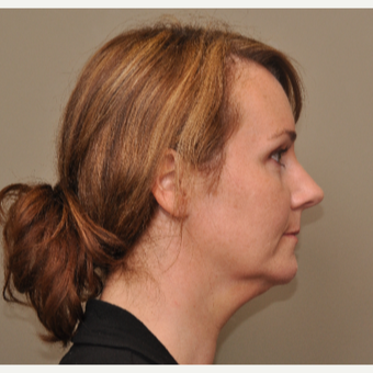 35-44 year old woman treated with Kybella before 3446708