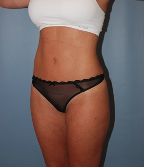 Smart Lipo after 1409625