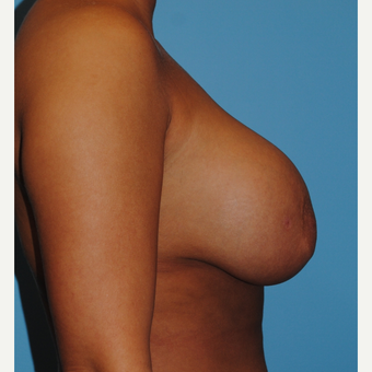 31 year old woman treated with Breast Implant Revision, mastopexy and implant exchange before 3506924