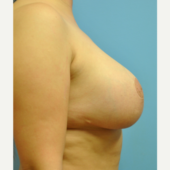 31 year old woman treated with Breast Implant Revision, mastopexy and implant exchange after 3506924