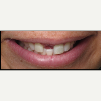 35-44 year old woman treated with Dental Implants before 3056676