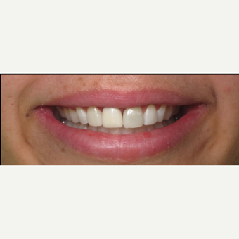 35-44 year old woman treated with Dental Implants after 3056676