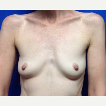 35-44 year old woman treated with Breast Augmentation before 3018997