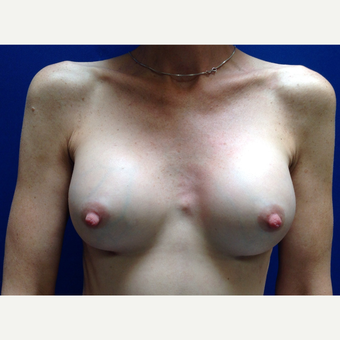 35-44 year old woman treated with Breast Augmentation after 3018997
