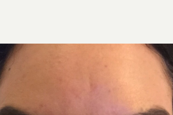 35-44 year old woman treated with Botox after 3762733