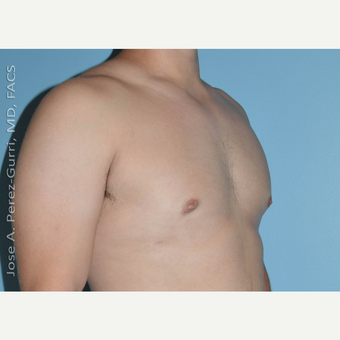 18-24 year old man treated with Male Breast Reduction after 3146097