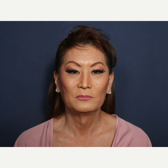 45-54 year old woman treated with Facelift (view 1 of 2) before 3103558