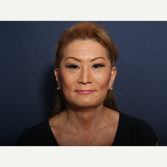 45-54 year old woman treated with Facelift (view 1 of 2) after 3103558