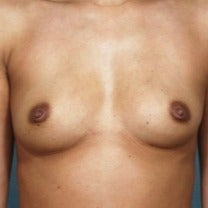25-34 year old woman treated with Breast Augmentation before 2202498