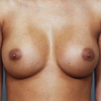 25-34 year old woman treated with Breast Augmentation after 2202498
