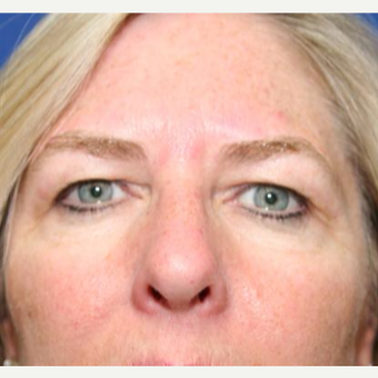 45-54 year old woman treated with Eyelid Surgery before 3094172