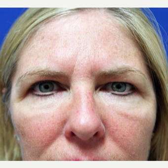 45-54 year old woman treated with Eyelid Surgery after 3094172