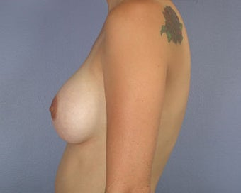 Breast Augmentation after 281402