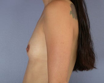 Breast Augmentation before 281402