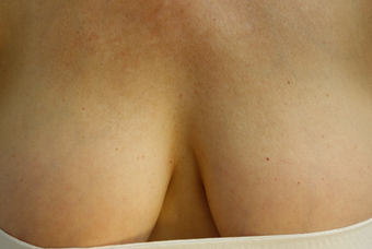 55-64 year old woman treated with sclerotherapy to veins she developed post breast augmentation