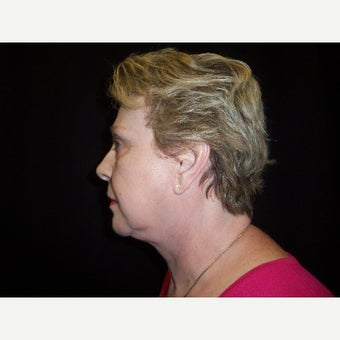 55-64 year old woman treated with Facelift after 1872696