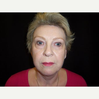 55-64 year old woman treated with Facelift 1872696
