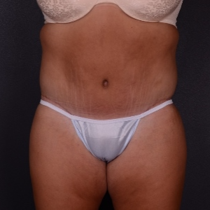 25-34 year old woman treated with Tummy Tuck after 3738028