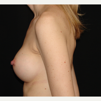35-44 year old woman treated with Breast Augmentation after 3303897