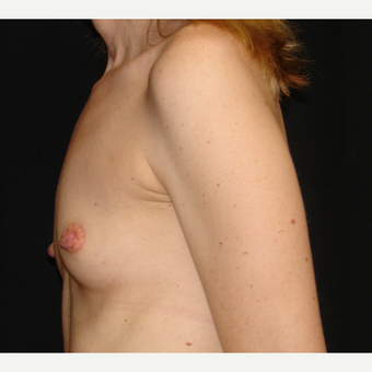35-44 year old woman treated with Breast Augmentation before 3303897