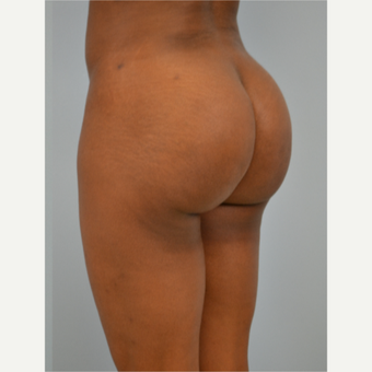 29 year old woman treated with Brazilian Butt Lift after 3432359