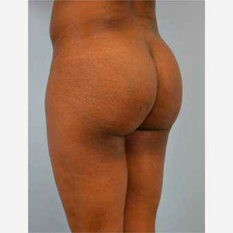29 year old woman treated with Brazilian Butt Lift before 3432359