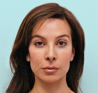 Endoscopic Brow Lift and Rhinoplasty after 1342867