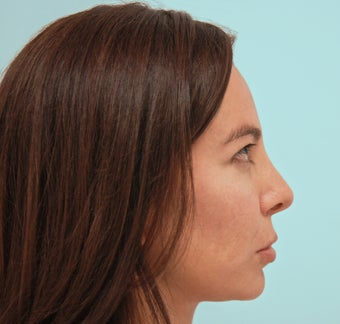 Endoscopic Brow Lift and Rhinoplasty 1342867