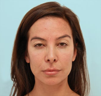 Endoscopic Brow Lift and Rhinoplasty before 1342867