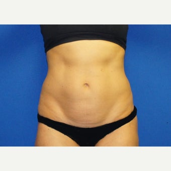 53 year old woman treated with Mini Tummy Tuck and Contour Liposuction before 1588613
