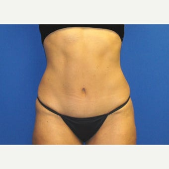 53 year old woman treated with Mini Tummy Tuck and Contour Liposuction after 1588613