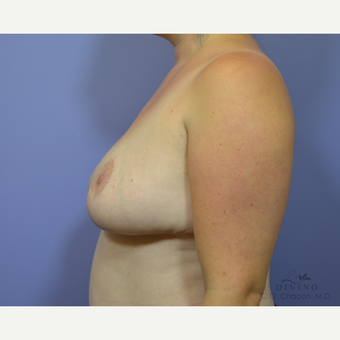 25-34 year old woman treated with Breast Lift after 3329470