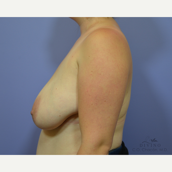 25-34 year old woman treated with Breast Lift before 3329470