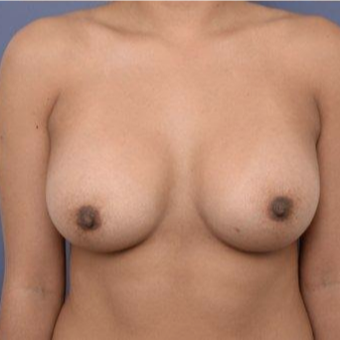 29 year old woman treated with Breast Augmentation after 3670116