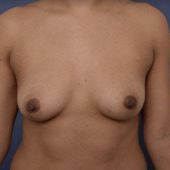 29 year old woman treated with Breast Augmentation before 3670116