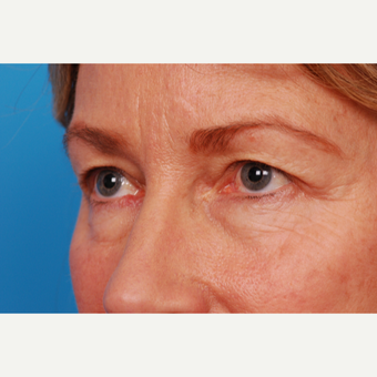 55-64 year old woman treated with Eyelid Surgery before 2995466