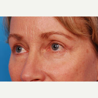 55-64 year old woman treated with Eyelid Surgery after 2995466