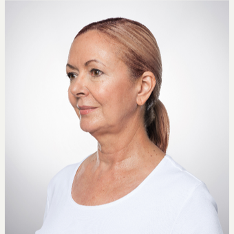 55-64 year old woman treated with Kybella before 2955713