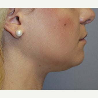 18-24 year old woman treated with Chin Liposuction and Small Chin Implant before 1651137