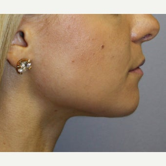 18-24 year old woman treated with Chin Liposuction and Small Chin Implant after 1651137