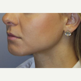18-24 year old woman treated with Chin Liposuction and Small Chin Implant 1651137