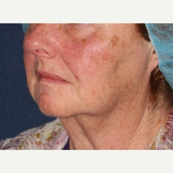 55-64 year old woman treated with Fraxel Laser 1628320